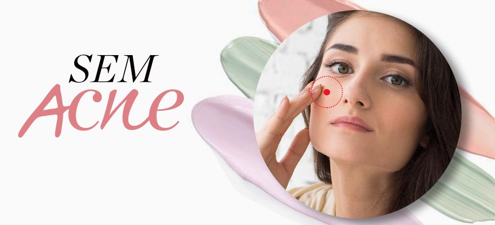 6 perguntas sobre acne adulta
